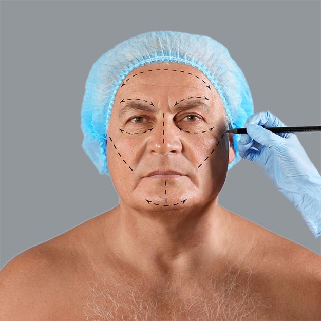 Пластическая хирургия мужская